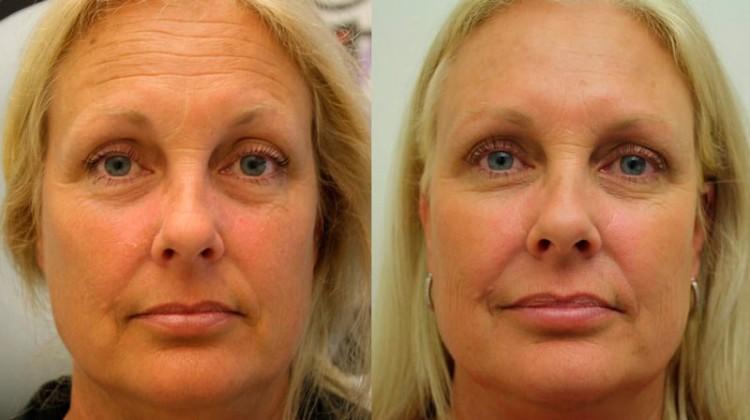 Омоложение кожи: ботокс, лазер, хирургия